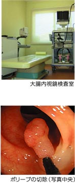 大腸内視鏡検査室、ポリープの切除